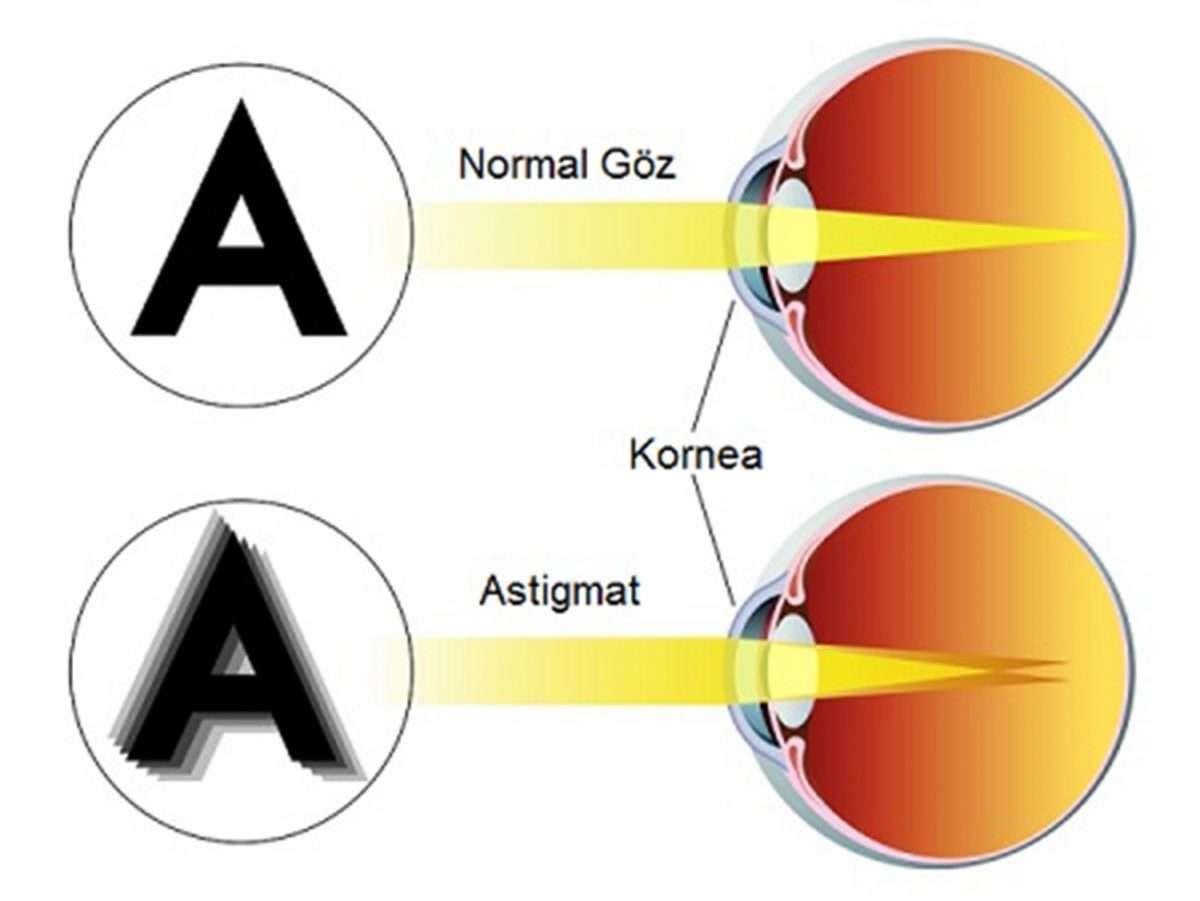 astigmat-1200x901.jpg