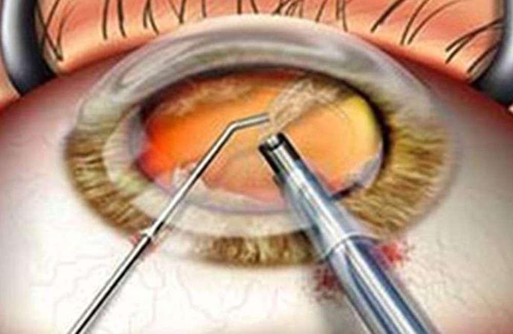 ekstrakapsuler-katarakt-ekstraksiyonu-yontemiyle-katarakt-ameliyati-691x450.jpg