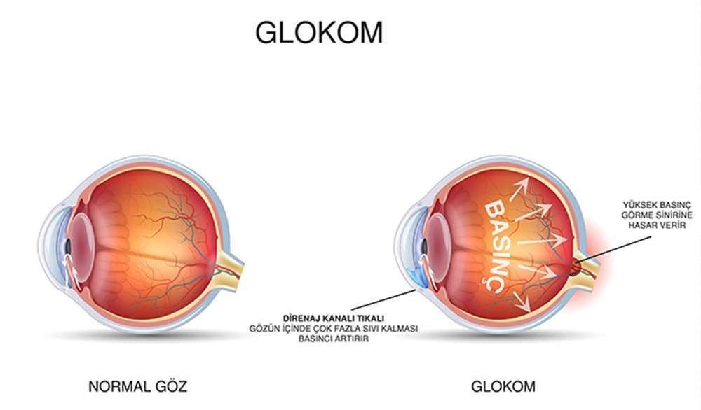 glokom-3-1.jpg
