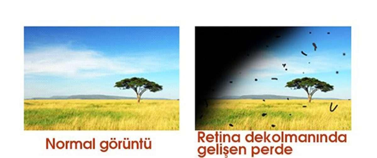 retina-dekolmani-1200x503.jpg